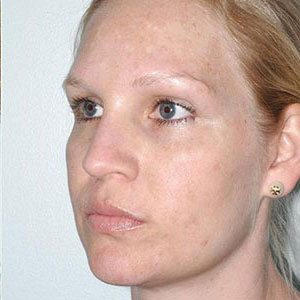 Corrective Chemical Peels