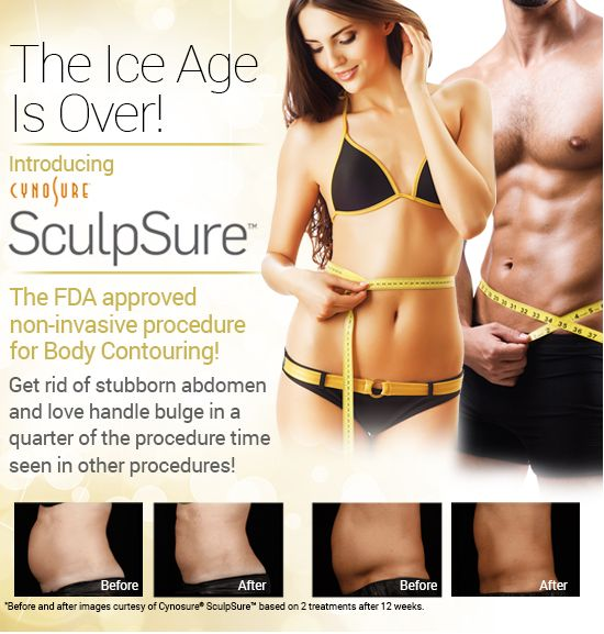 SculpSure by Cynosure in Kernersville, North Carolina