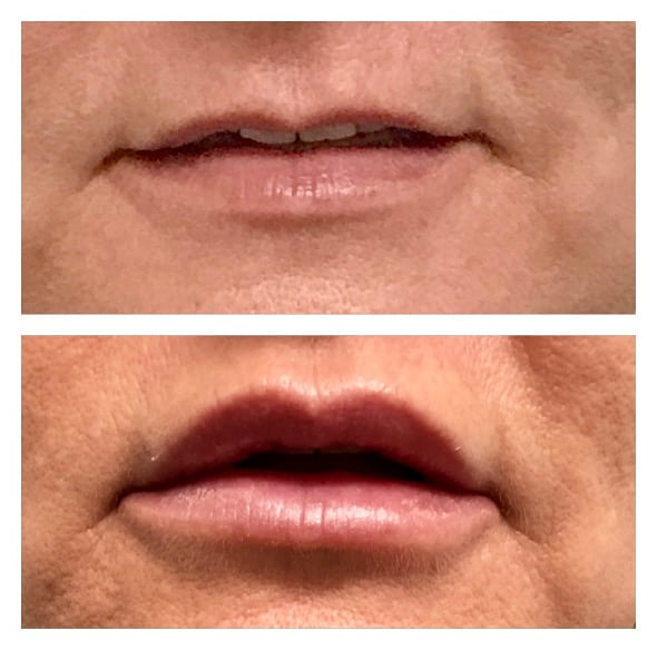 Injectable Fillers - Lips