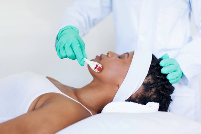 An Introduction to Micro-Needling