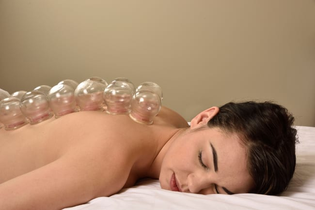 Benefits of Cupping Therapy and Why You Might Want to Try It