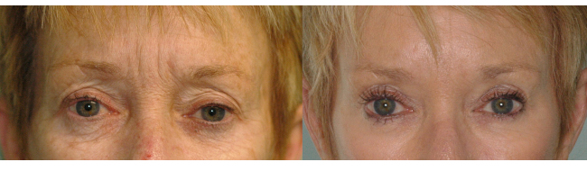 What Can You Expect from Botox Treatments for Facial Lines?