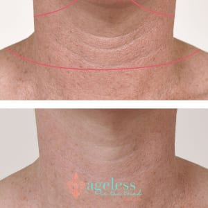 10 Ways to Minimize Wrinkles Caused by Tech Neck